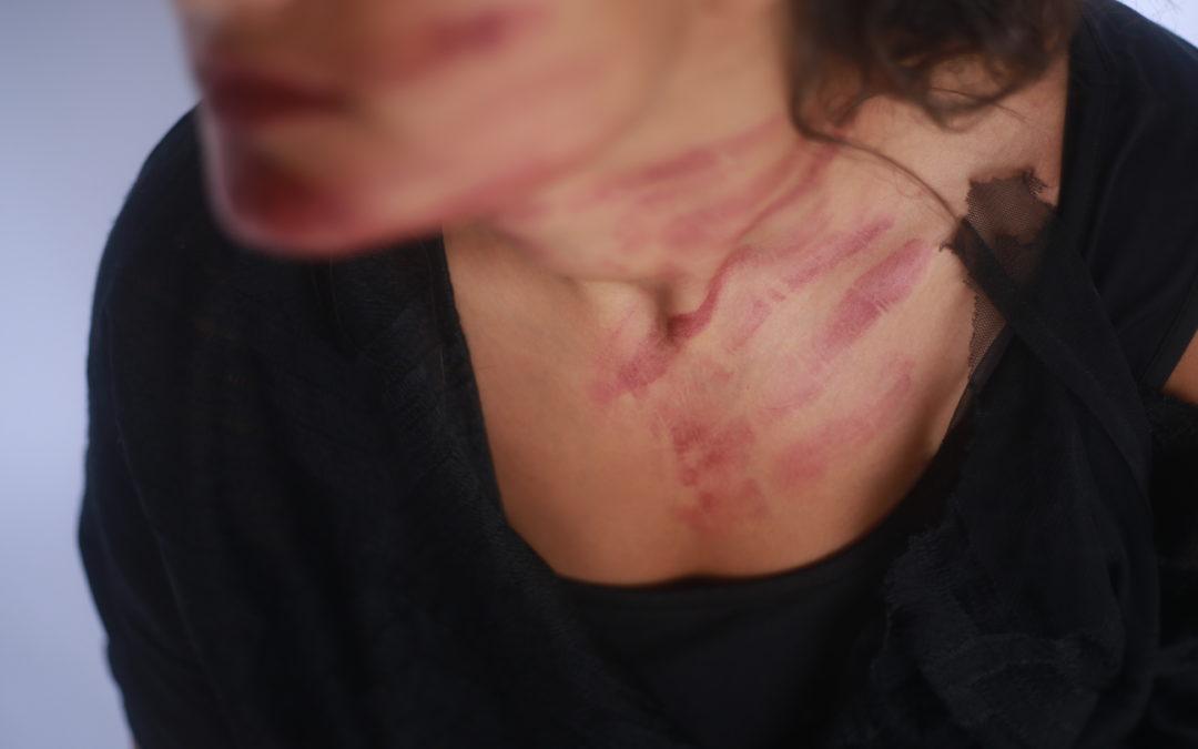 العنف الاسري: ضرب واعتداء وجرائم قتل والمجرم يرى نفسه ناصحاً ومربياً
