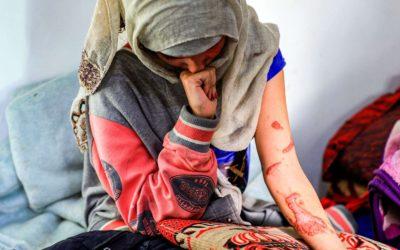 شوّه وجهها بالأسيد … «العنود» تكشف معاناة فتيات اليمن مع التزويج المبكر